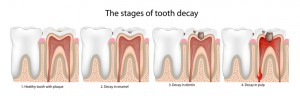 cavity on front tooth